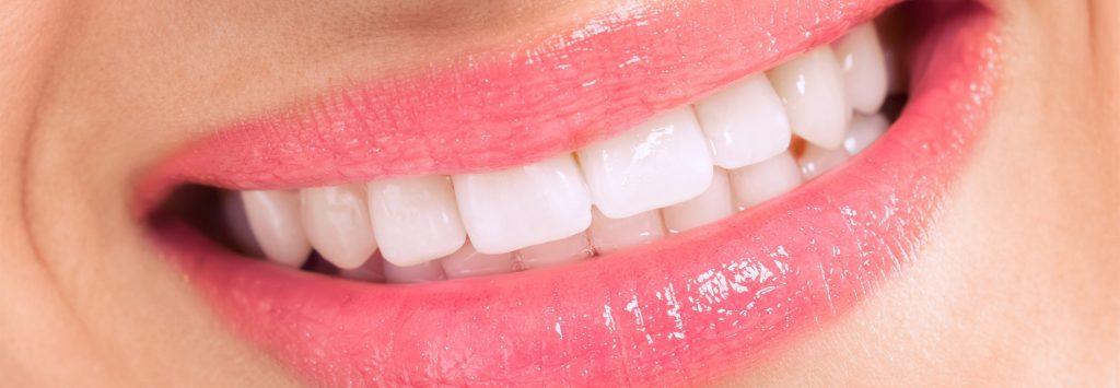 اصلاح طرح لبخند در کلینیک دندانپزشکی دیجیتال دکتر نوشین نصیری