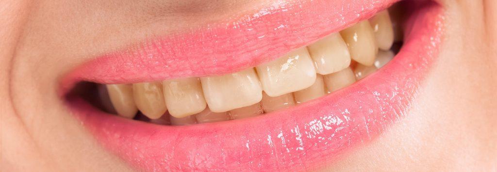 دندان بدرنگ شده