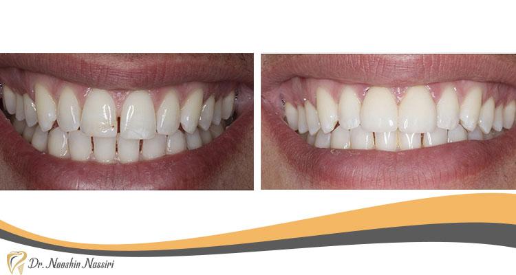 قبل و بعد ونیر کامپوزیت دندان ها