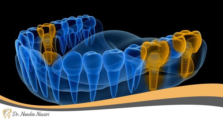 تصویر برداری داخل دهان در دندانپزشکی دیجیتال