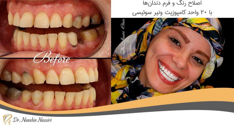 اصلاح رنگ و فرم دندانها با 20 واحد کامپوزیت ونیر سوئیسی