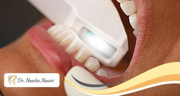 مراحل اسکن دیجیتال دندان و مزایای آن