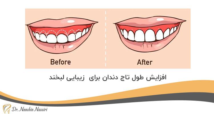 افزایش طول تاج دندان برای زیبایی لبخند