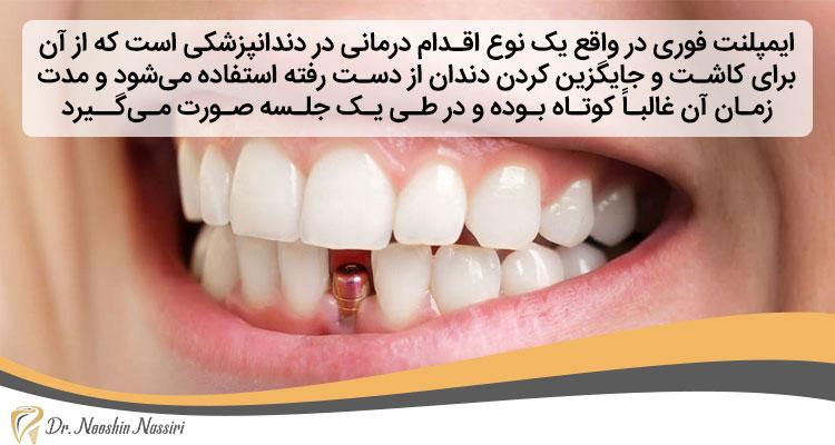 انواع ایمپلنت فوری دندان