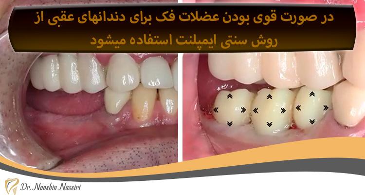 ایمپلنت دندانهای عقبی