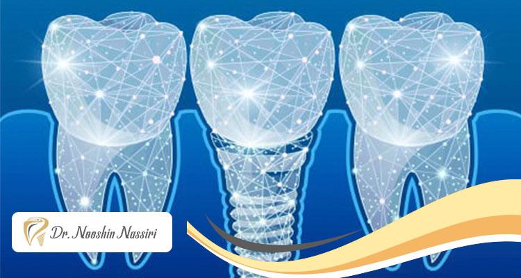 ایمپلنت دیجیتال دندان و مزایای آن