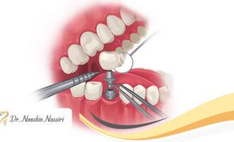 ایمپلنت یه روزه ی دندان امکان پذیر است؟