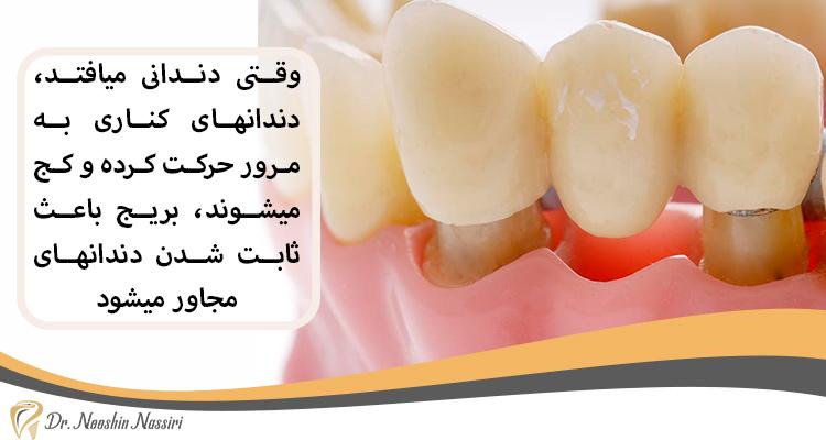 بریج چفت شدن دندان