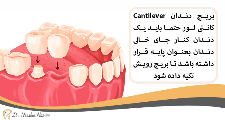 در بریج دندان کانتی لور یک دندان پایه میشود