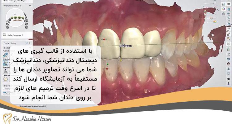 ترمیم سریع تر دندان به کمک قالب گیری