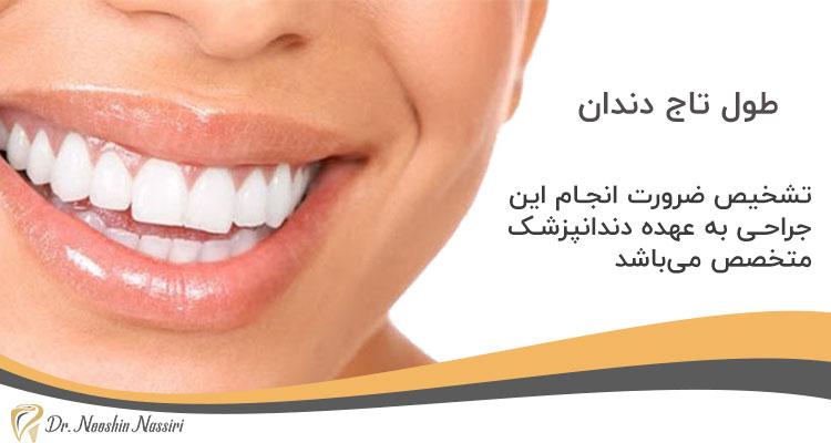 تشخیص انجام افزایش طول تاج دندان