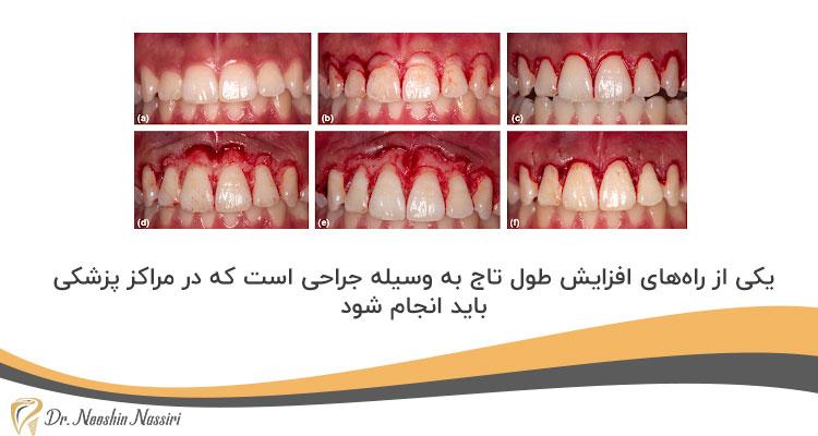 جراحی لثه برای افزایش طول تاج دندان