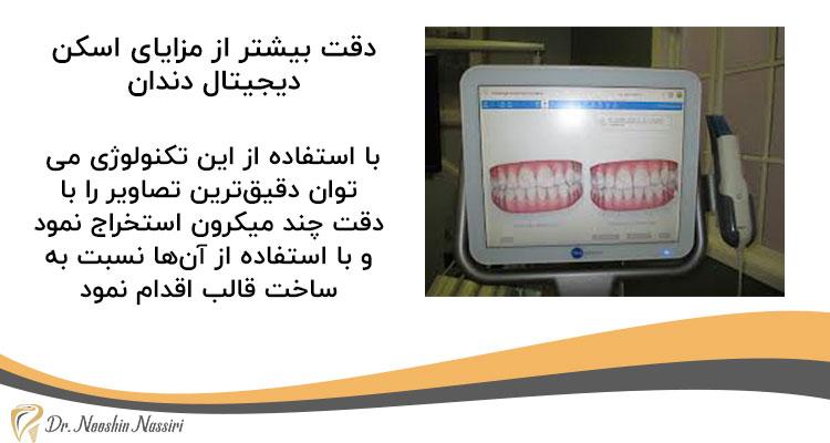 دقت بیشتر از مزایای اسکن دیجیتال دندان