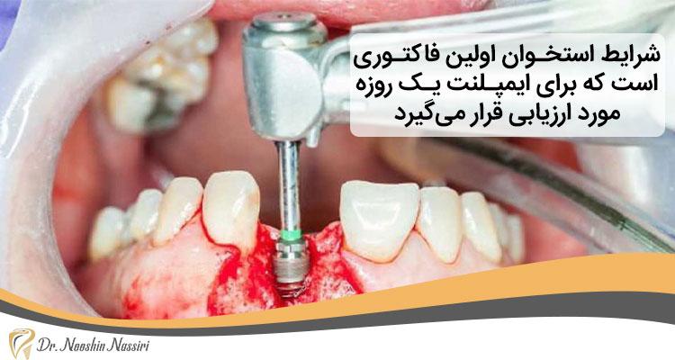 شرایط لازم برای ایمپلنت یک روزه دندان