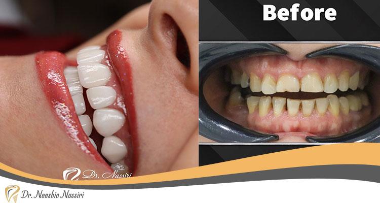 عکس قبل و بعد لمینت سرامیکی دندان در کلینیک دکتر نوشین نصیری