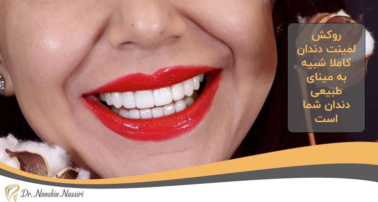 فوابد لمینت دندان چیست