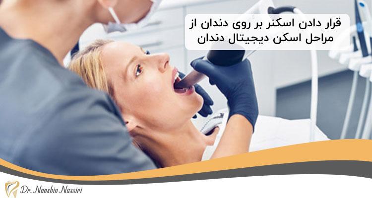 قرار دادن اسکنر بر روی دندان از مراحل اسکن دیجیتال دندان