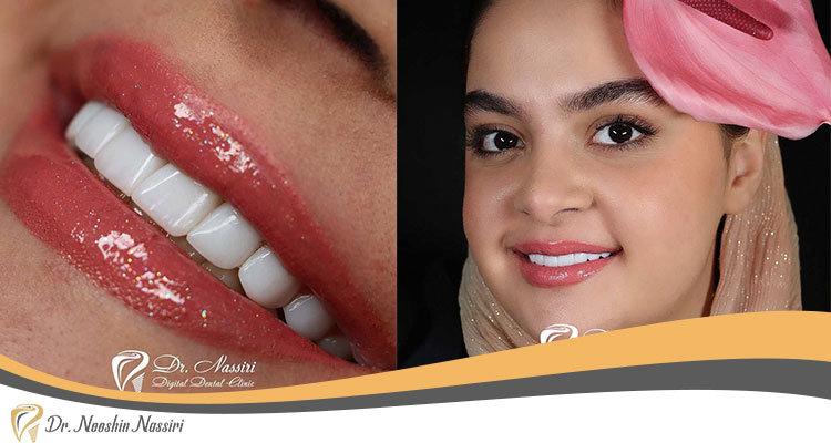 لمینیت دندان در کلینیک دکتر نوشین نصیری