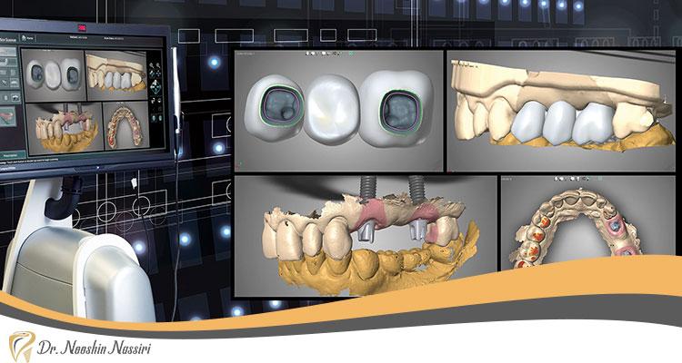 مراحل اسکن دیجیتال دندان به صورت تصویری