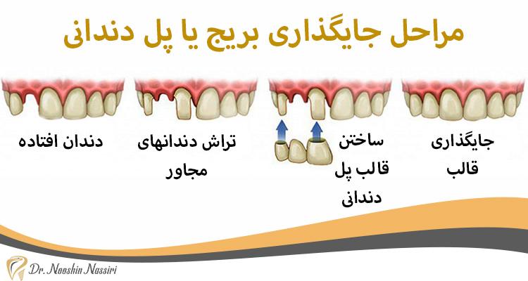 مراحل جایگذاری بریج یا پل دندانی