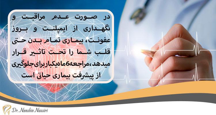 عدم مراقبت از ایمپلنت و بیماری قلبی
