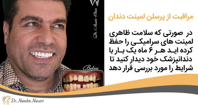 مراقبت از پرسلن لمینت دندان