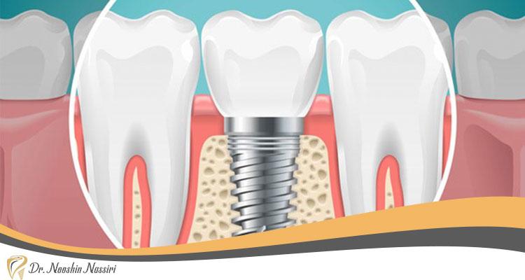 مناسب بودن استخوان از شروط ایمپلنت یک روزه دندان