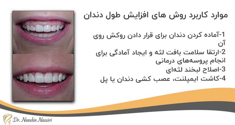 موارد کاربرد روش های افزایش طول دندان