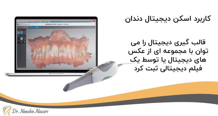 کاربرد اسکن دیجیتال دندان