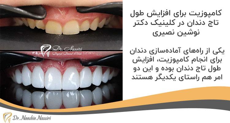 کامپوزیت برای افزایش طول تاج دندان در کلینیک دکتر نوشین نصیری