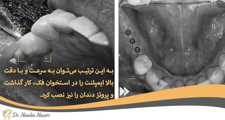 قبل و بعد از نصب ایمپلنت دندان دکتر نصیری