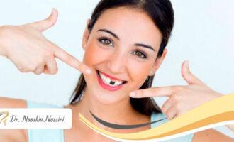 بهترین روش های جایگزینی دندان ار دست رفته
