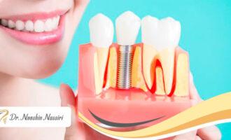 روش های متفاوت کاشت ایمپلنت دندان