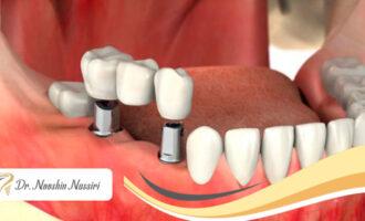 علت لق شدن ایمپلنت دندان چیست؟