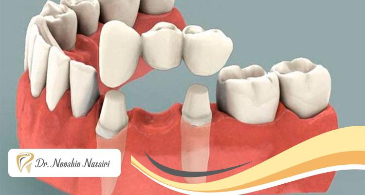 جایگزینی دندان از دست رفته بدون ایمپلنت با استفاده از بریج دندان