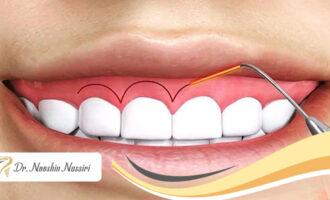 انواع روشهای افزایش طول تاج دندان