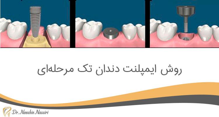 روش ایمپلنت دندان تک مرحله ای