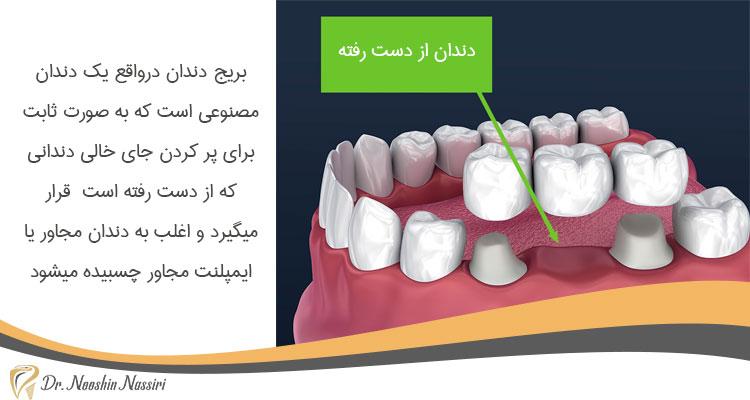 با استفاده از بریج دندان به راحتی می توانید دندان از دست رفته را جایگزین کنید