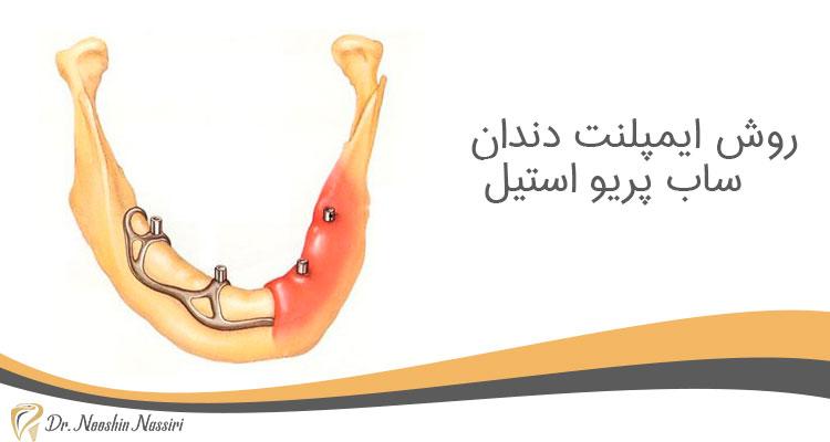 روش ایمپلنت دندان ساب پریو استیل