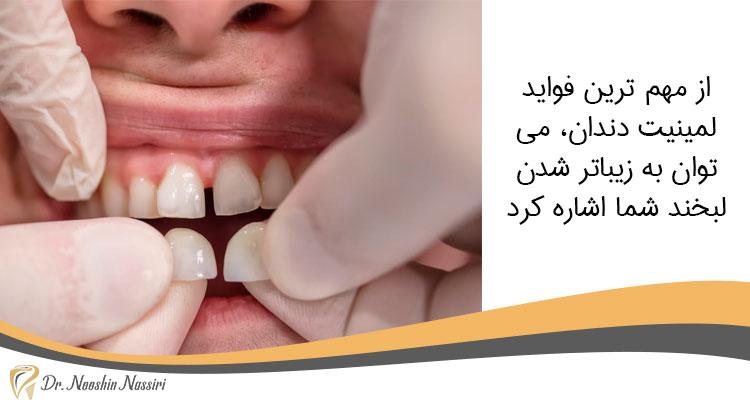 اصلاح طرح لبخند از فواید لمینیت دندان