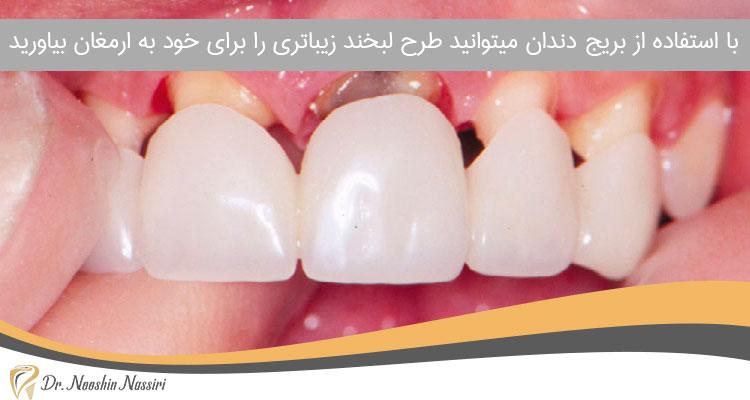 جایگزینی دندان از دست رفته بدون ایمپلنت با استفاده از بریج دندان لبخند زیبایی را به شما هدیه می دهد