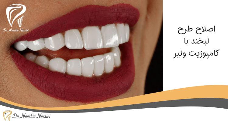 اصلاح طرح لبخند توسط دکتر نوشین نصیری با روش کامپوزیت ونیر