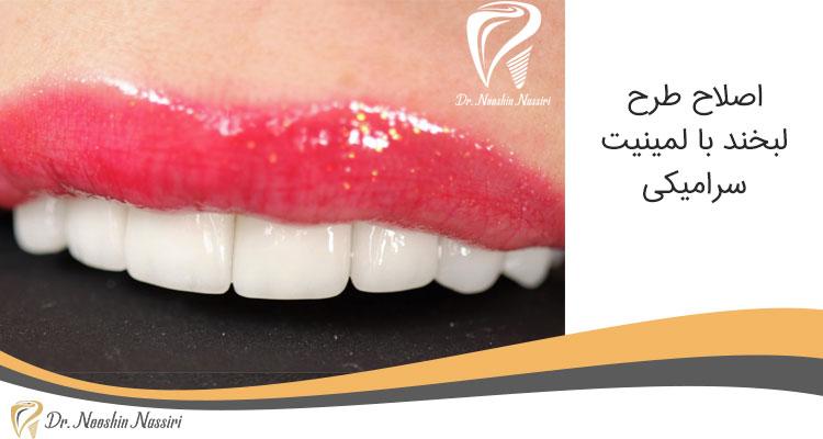 اصلاح طرح لبخند توسط دکتر نوشین نصیری با روش لمینیت سرامیکی