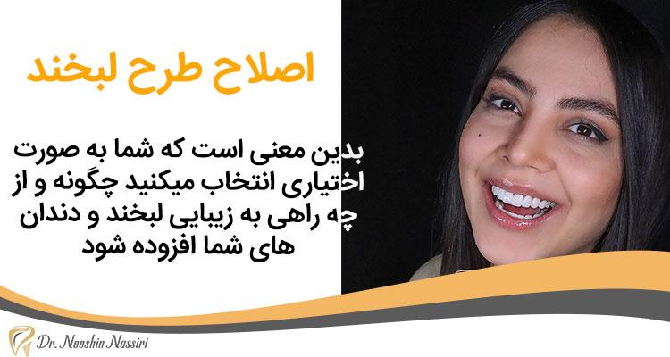 اصلاح طرح لبخند دکتر نوشین نصیری