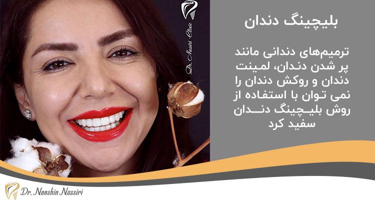 بلیچینگ دندان برای روکش دندانی