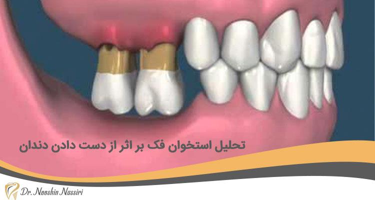 تحلیل استخوان فک بر اثر از دست دادن دندان