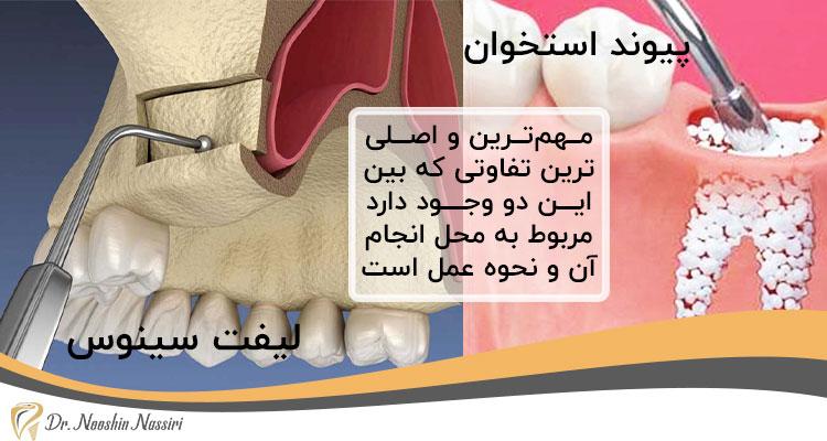 تفاوت لیفت سینوس و پیوند استخوان