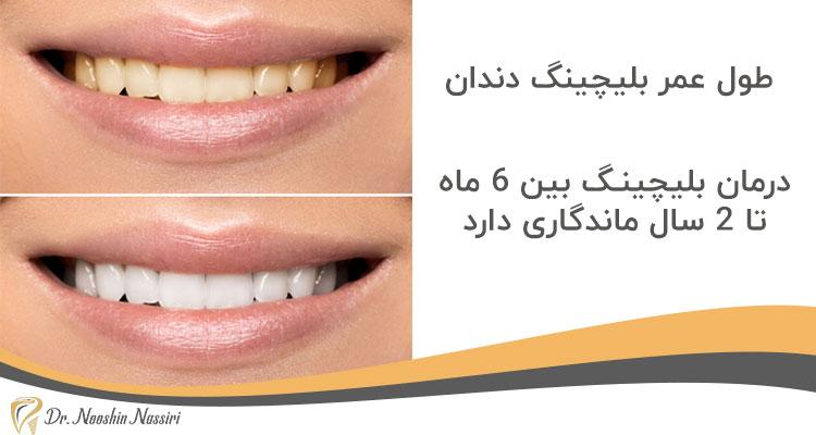 طول عمر بلیچینگ دندان