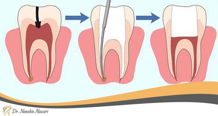 علت درد دندان بعد از عصب کشی چیست