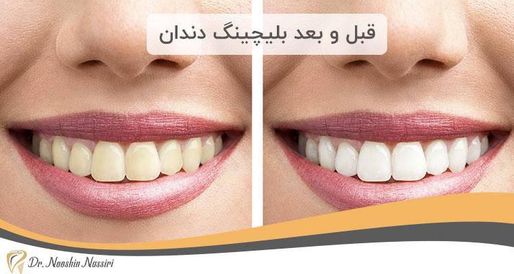 قبل و بعد بلیچینگ دندان